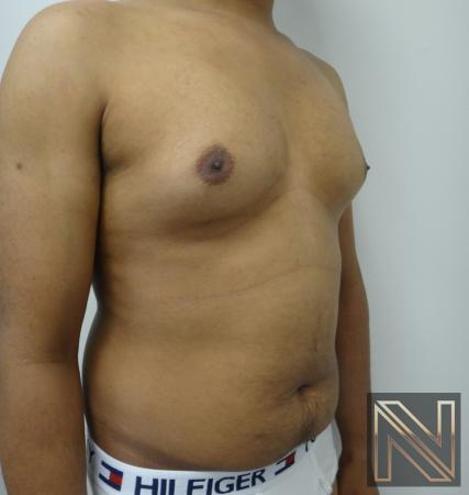 Gynecomastia: Patient 6 - Before and After 3