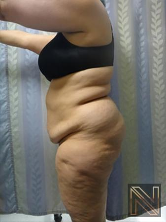 Abdominoplasty: Patient 14 - Before Image 2