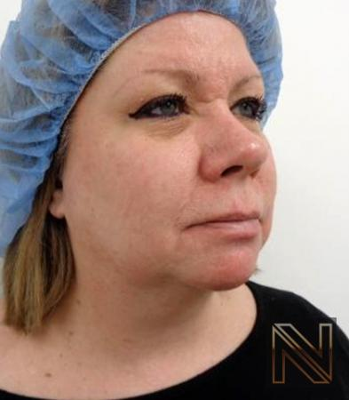 Fractional Resurfacing: Patient 2 - After Image 2