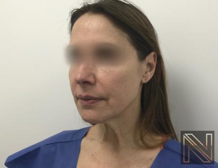 Facelift/Mini Facelift: Patient 5 - Before Image 2