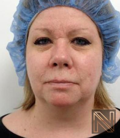 Fractional Resurfacing: Patient 2 - After Image 5