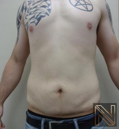 Mini Tummy Tuck: Patient 2 - After Image