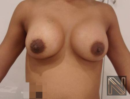 Breast Augmentation: Patient 18 - After Image 1