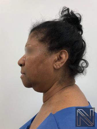 Facelift/Mini Facelift: Patient 7 - Before Image
