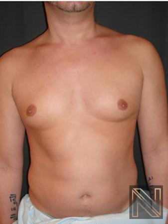 Gynecomastia: Patient 2 - Before Image