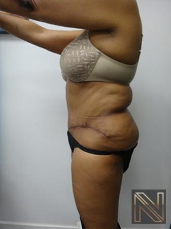 Abdominoplasty: Patient 8 - After Image 2