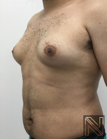 Gynecomastia: Patient 10 - Before and After Image 5