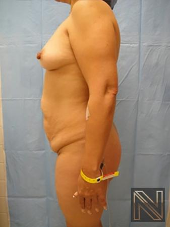 Abdominoplasty: Patient 20 - Before 2