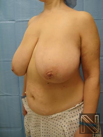 Breast Reduction: Patient 8 - Before Image 2