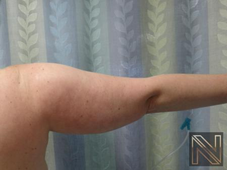 Liposuction: Patient 24 - Before and After Image 4