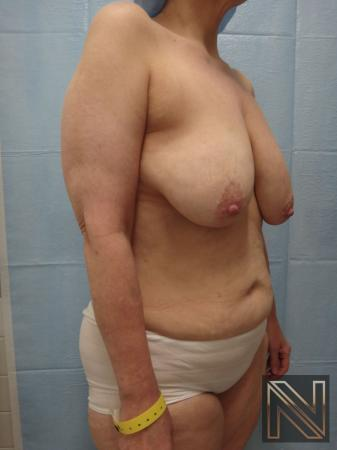 Breast Lift: Patient 3 - Before Image 2