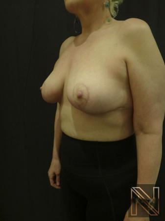 Breast Lift: Patient 3 - After Image 3