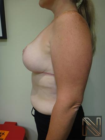 Breast Reduction: Patient 9 - After Image 4