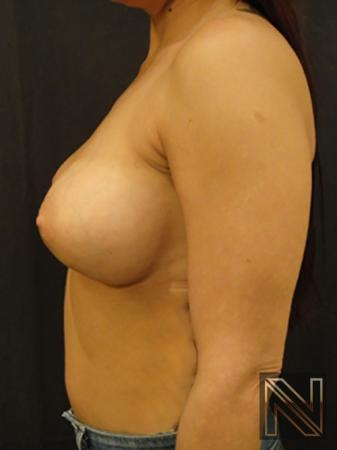 Breast Augmentation: Patient 10 - After Image 4