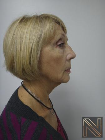 Ultherapy®: Patient 2 - After 3