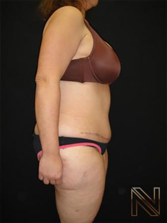 Abdominoplasty: Patient 19 - After Image 3