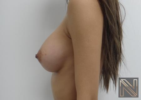 Breast Augmentation: Patient 1 - After Image 3
