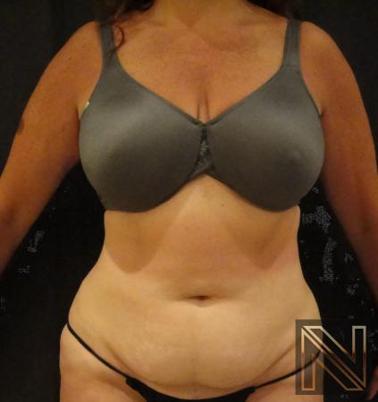 Mini Tummy Tuck: Patient 6 - Before Image 1