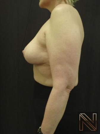 Breast Lift: Patient 3 - After Image 4