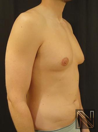 Gynecomastia: Patient 4 - Before Image 3