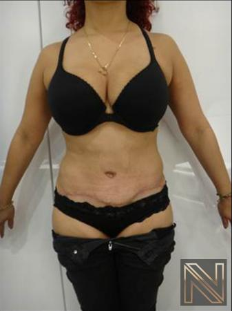 Abdominoplasty: Patient 25 - After Image 1