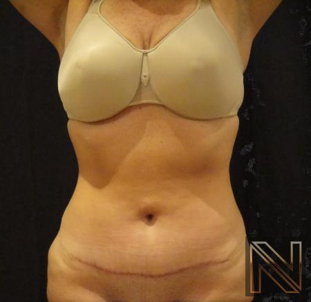 Mini Tummy Tuck: Patient 6 - After Image 1