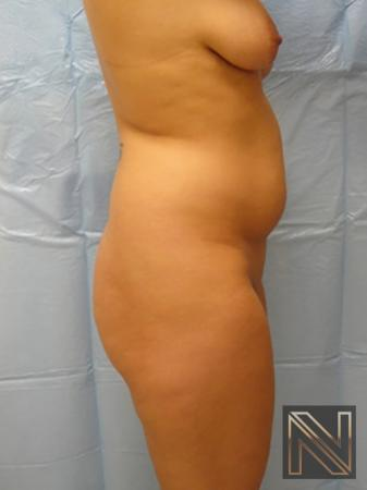 Butt Augmentation: Patient 1 - Before and After Image 2