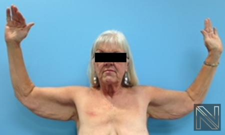 Brachioplasty: Patient 9 - Before Image