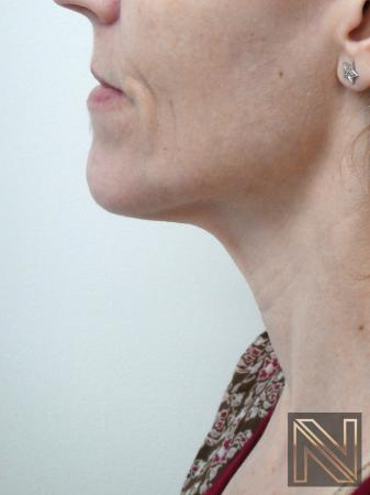 Ultherapy®: Patient 1 - After Image