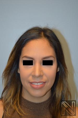 Rhinoplasty: Patient 6 - After Image
