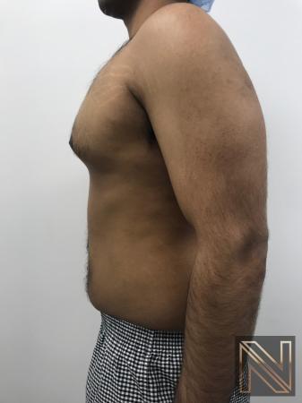 Gynecomastia: Patient 7 - Before Image 2