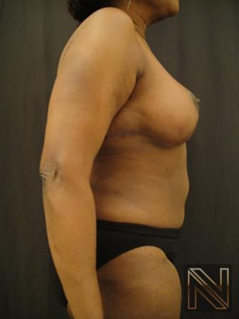 Breast Reduction: Patient 4 - After 5