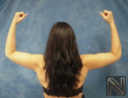 Brachioplasty: Patient 2 - After Image 2
