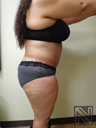 Abdominoplasty: Patient 11 - After Image 3
