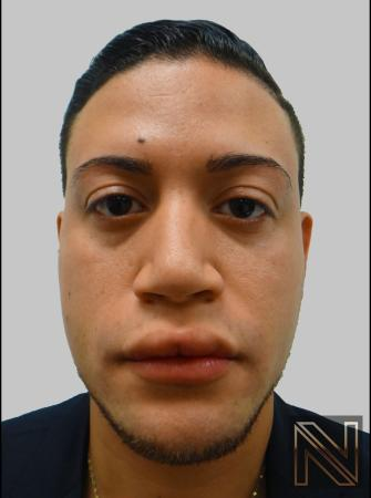 Fillers: Patient 13 - Before Image 1