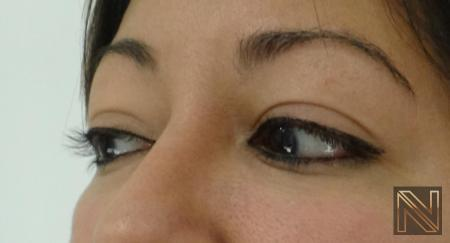 Fillers: Patient 10 - After Image