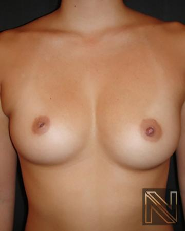 Inverted Nipple Surgery: Patient 1 - Before Image 1