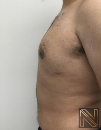 Gynecomastia: Patient 10 - After 2