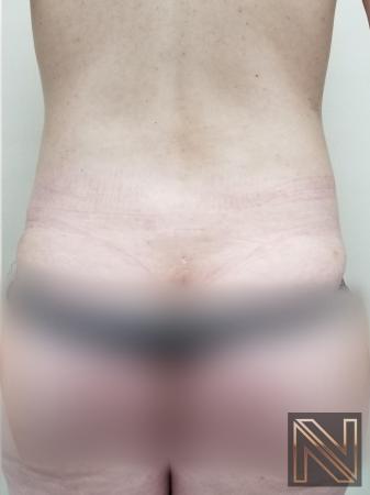 Liposuction: Patient 22 - After Image 1