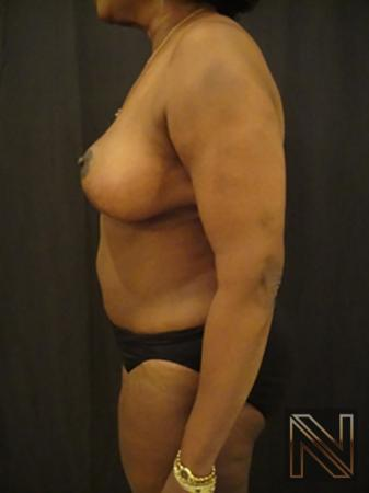 Breast Reduction: Patient 4 - After 4