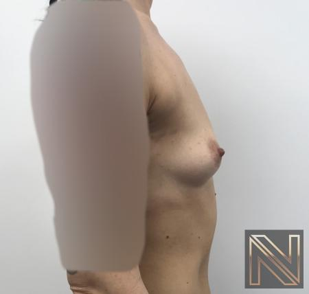 Breast Augmentation: Patient 2 - Before and After Image 3