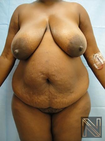Abdominoplasty: Patient 9 - Before Image