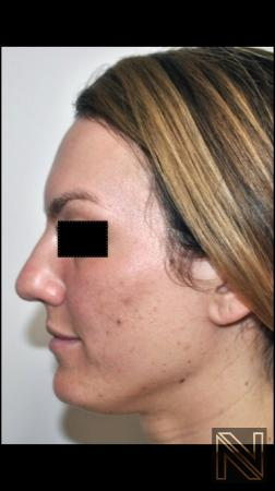 Rhinoplasty: Patient 2 - Before Image