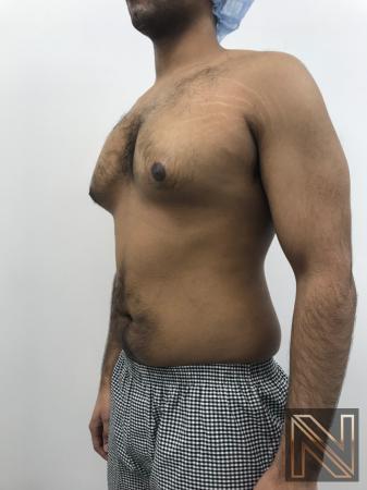Gynecomastia: Patient 7 - Before Image 3