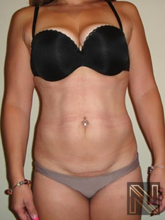 Liposuction: Patient 7 - After Image 1
