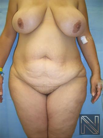 Abdominoplasty: Patient 19 - Before 1