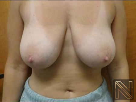 Breast Reduction: Patient 1 - Before and After Image 3