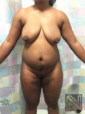 Butt Augmentation: Patient 4 - Before Image 1