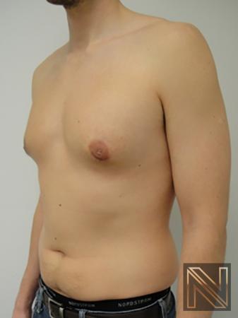 Gynecomastia: Patient 4 - After 2