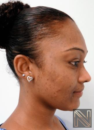 Laser Skin Resurfacing - Face: Patient 4 - After Image 2